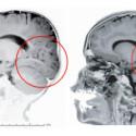 brain-300x174.jpg